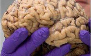 Otak Manusia-Hypnosis SHOT-Indonesia